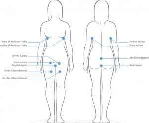Die Abbildung zeigt, an welchen Körperregionen Akne inversa häufig auftritt.