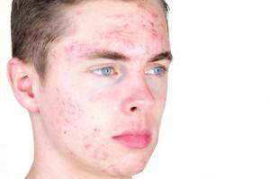 Akne zählt zu den häufigsten Hautkrankheiten und kann in unterschiedlicher Schwere auftreten.